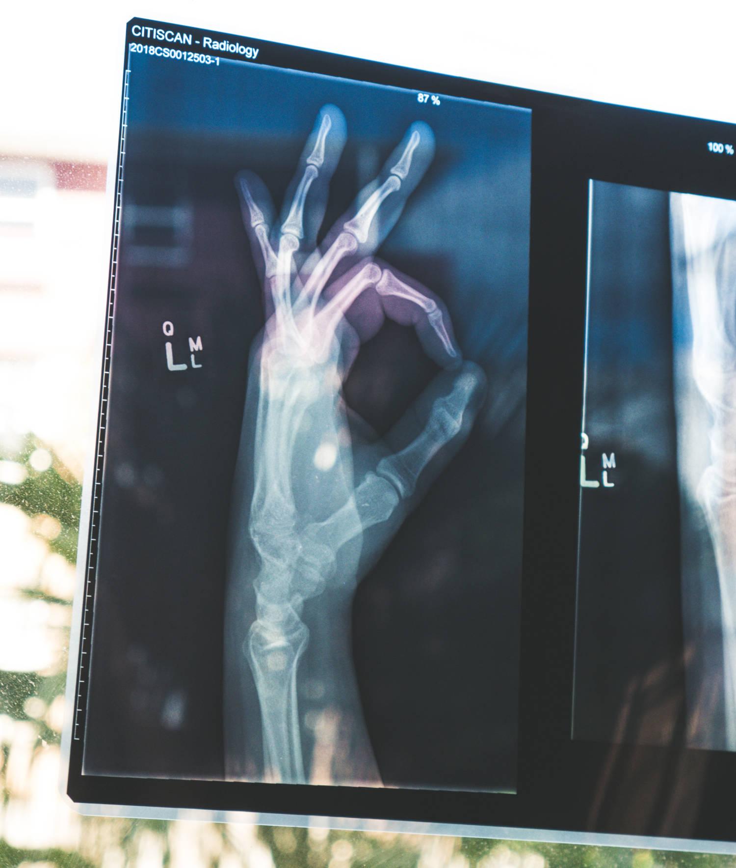 """Röntgenbild Hand und Unterarm mit angedeutetem """"ok""""-Kreis als Symbol für transparente Durchleuchtung."""